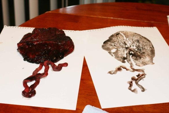 Printing with the placenta